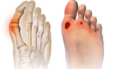 Custom Shoe Orthotics