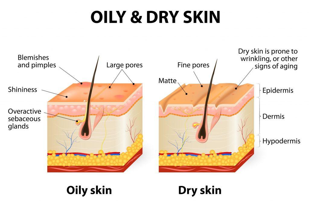 Oily vs Dry skin