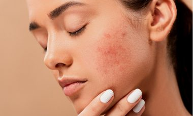 When to Seek Medical Help for Acne